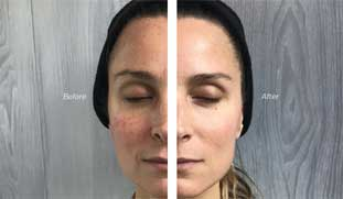 cryotoning for wrinkle reduction