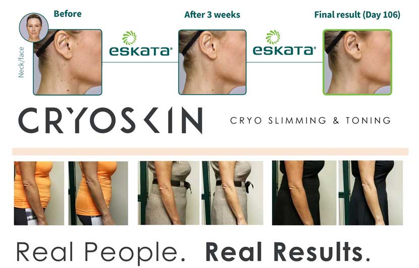 eskata for raised age spots and cryoskin for slimming and toning